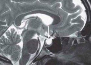 mekkora a hipertónia terhelése kocogás magas vérnyomás kezelés