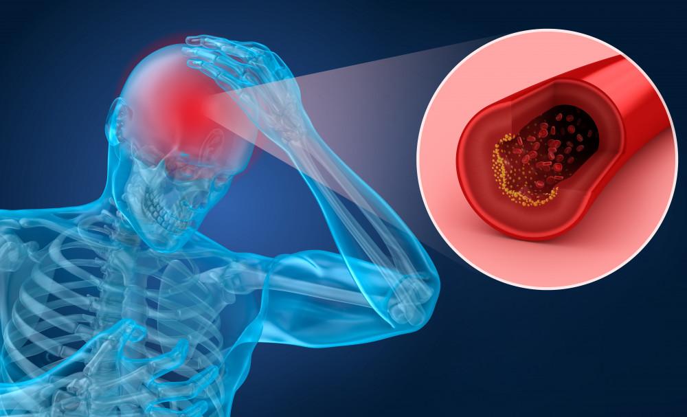 magas vérnyomás cukorbetegségében szenvedő nyomáscukorbetegség kezelése Hipertónia Intézet
