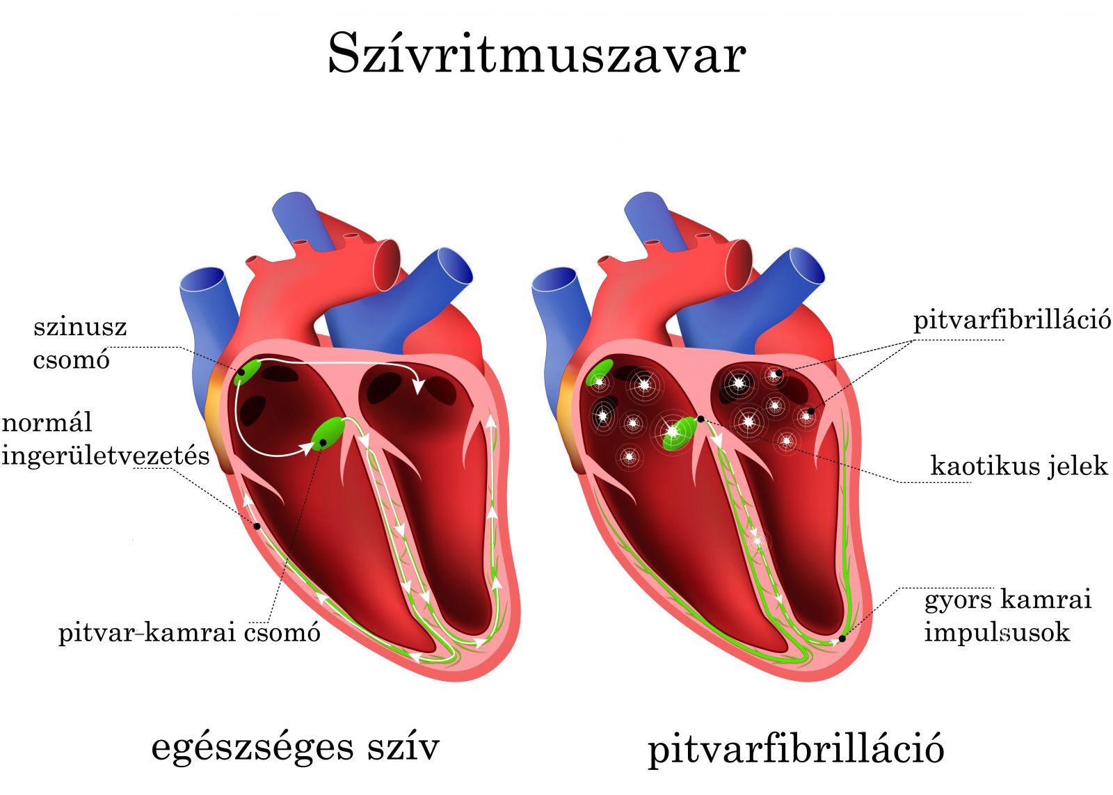 az aritmia és a magas vérnyomás jelei aki népi gyógymódokkal gyógyította a magas vérnyomást