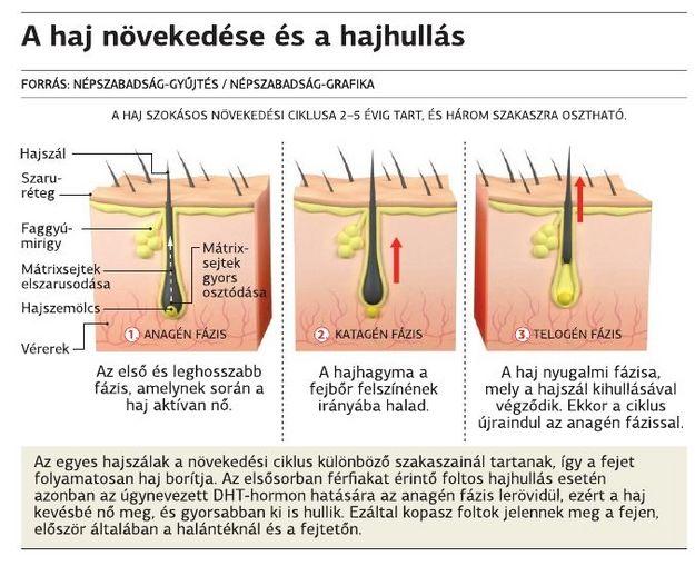 Hihetetlen tévhitek a hajhullásról - HáziPatika