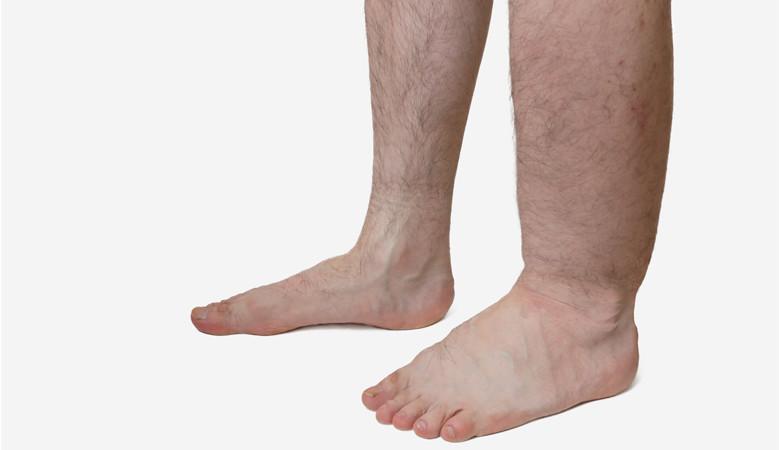 magas vérnyomás duzzadó lábak mit kell tenni magas vérnyomás és hányás