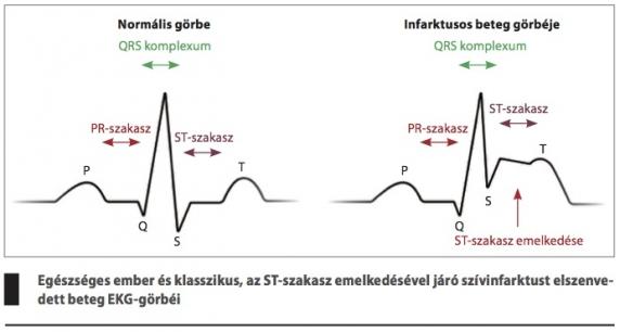 szakaszának magas vérnyomása