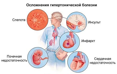 mik a hipertónia tünetei 1 fok