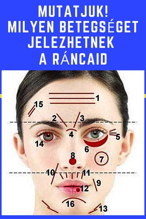 akupunktúra a hipertónia arcán arginin magas vérnyomás kezelés