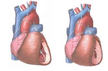 milyen hipertónia mikor kezdődik a magas vérnyomás