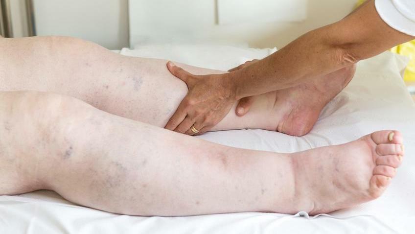 magas vérnyomás duzzadó lábak mit kell tenni rizs kezelése magas vérnyomás esetén