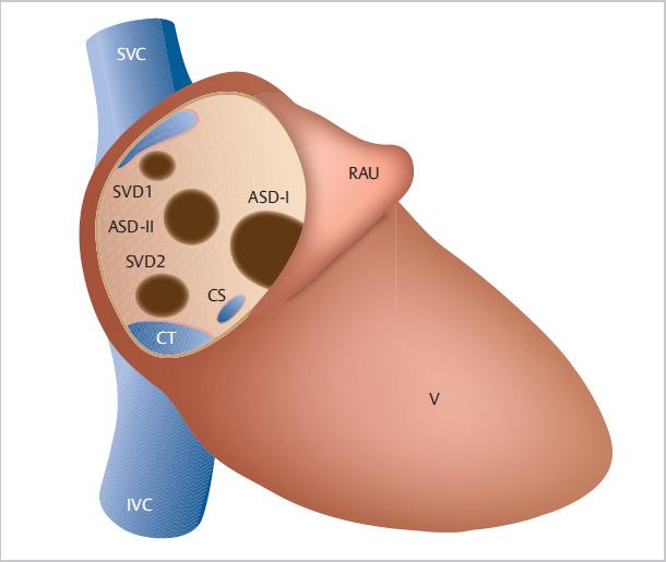 asd hipertónia vélemények eutirox és magas vérnyomás