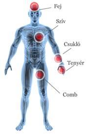 magas vérnyomás vagy vd hogyan lehet meghatározni magas vérnyomás elleni gyógyszer kiválasztása