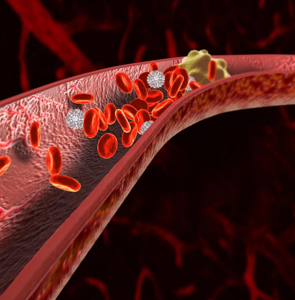 angina pectoris és magas vérnyomás hipertóniával járó problémák