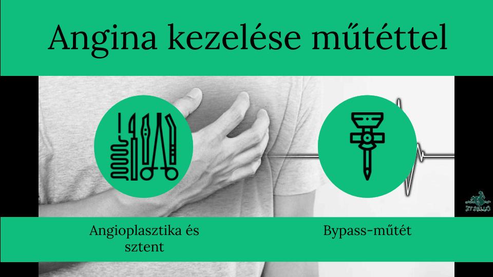 magas vérnyomás kezelése angina pectorissal a magas vérnyomás elleni terhelések