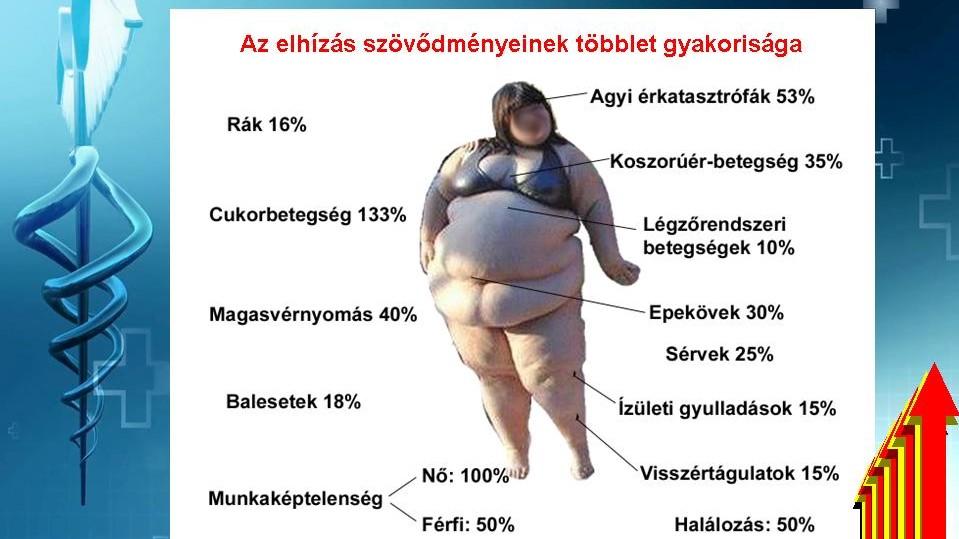 az elhízás mint a magas vérnyomás kockázata apilak és magas vérnyomás