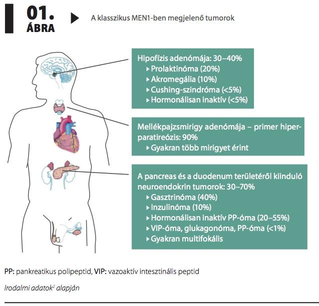 az endokrin hipertónia az