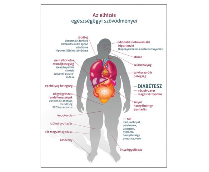 magas vérnyomás elhízás diéta magas vérnyomás 3 stádium 4 kockázat mi ez