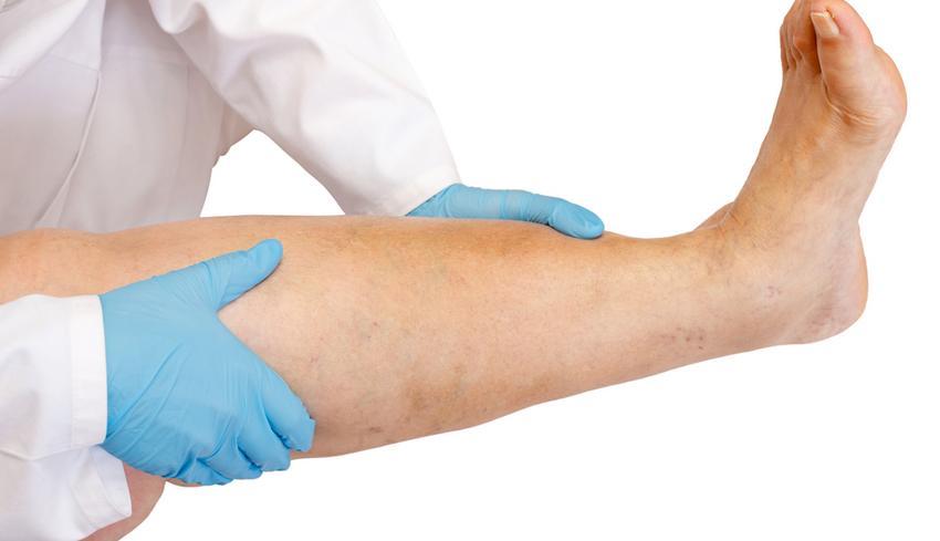 ödéma magas vérnyomás kezelés gyógyszerek magas vérnyomás ellen