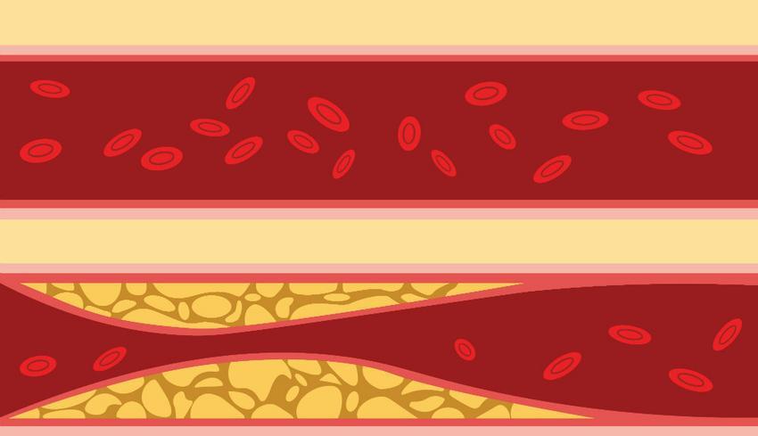 magas vérnyomás a mikrobiológia szerint 10 hypothyreosis hipertónia