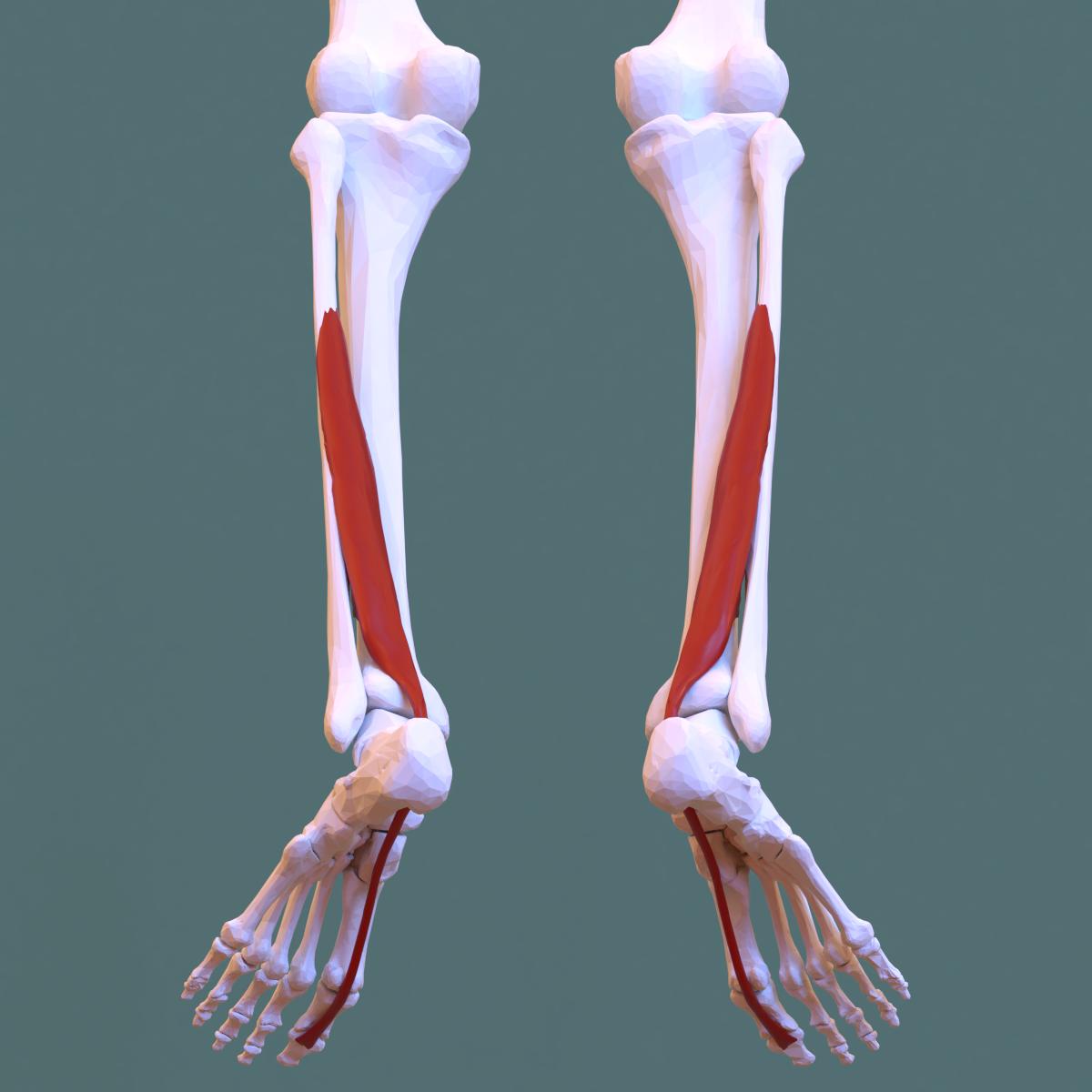 a flexor hipertónia az mi a hipertóniás beteg
