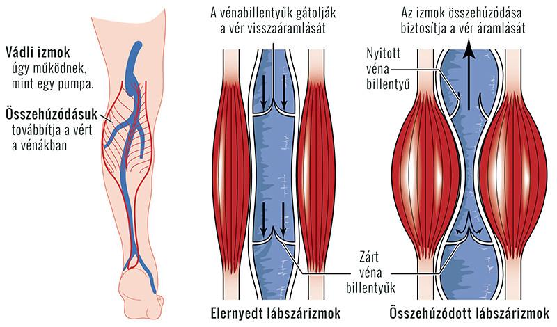kézi vénák magas vérnyomás idegesség vagy magas vérnyomás
