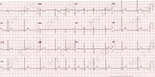 magas vérnyomás epés fokozott szívnyomás hipertóniával