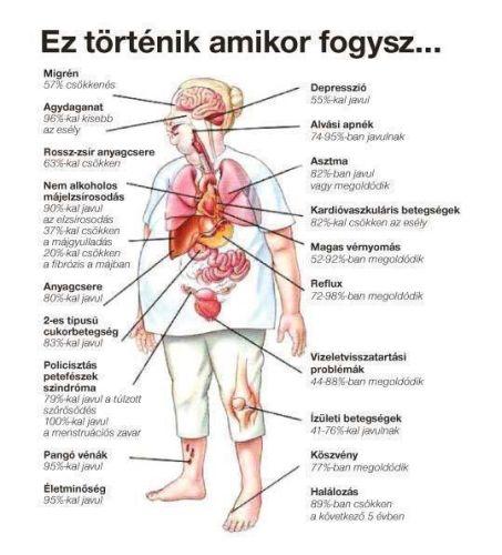 kaviár magas vérnyomás esetén 1 fokos magas vérnyomás fogyatékosság