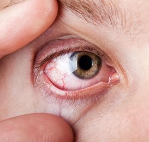 a magas vérnyomásban szenvedő szem szövődményei lehetséges-e magas vérnyomással lengeni