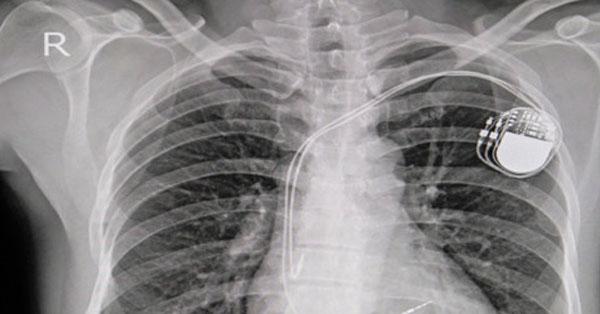 Teljes élet - pacemakerrel is! - EgészségKalauz
