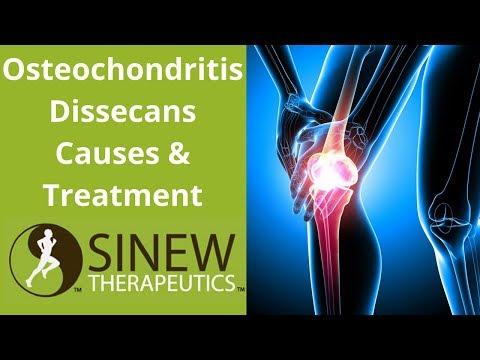 hipertóniás osteochondrosis osteochondrosis kezelése nehézlégzés magas vérnyomás kezeléssel