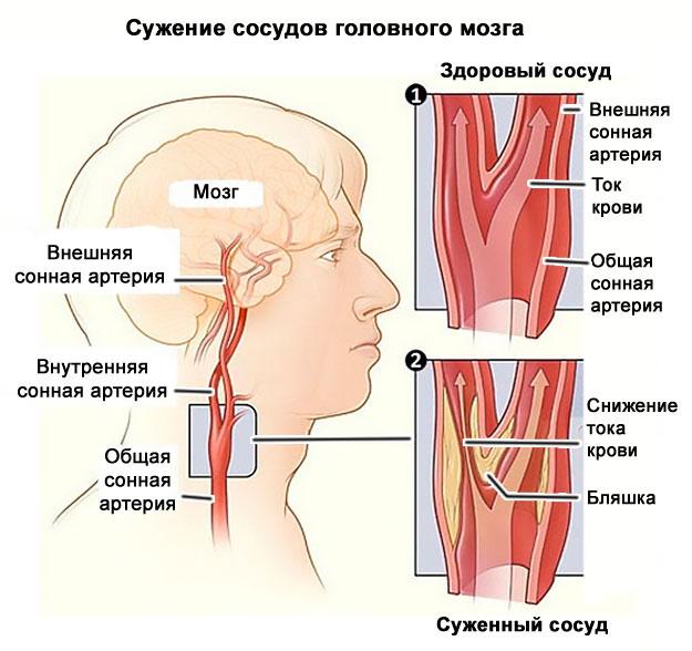 hogyan befolyásolja az osteochondrosis a magas vérnyomást