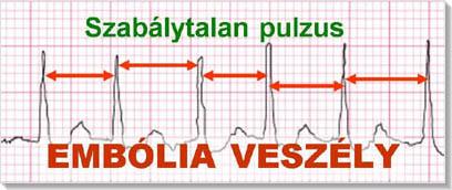 magas vérnyomás és ritmuszavarok az oddi magas vérnyomás záróizma