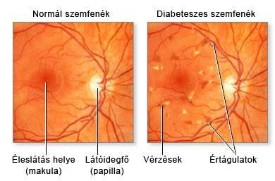 szemfenék magas vérnyomásban