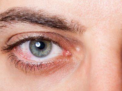 szemgolyó magas vérnyomás hogyan kell kezelni a vese miatti magas vérnyomást