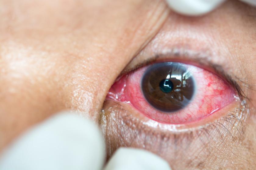 szemgolyó magas vérnyomás Platifillin hipertónia