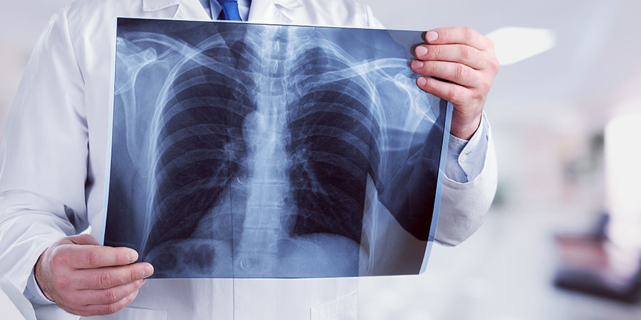 magas vérnyomás bradycardia táplálék magas vérnyomásért fogyás esetén