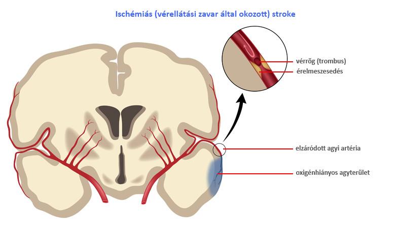 lehet-e hipertónia osteochondrosisból