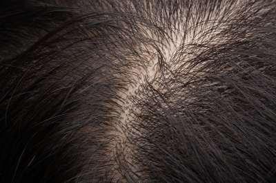 kieshet-e a haj a magas vérnyomás miatt agyi érrendszeri magas vérnyomás