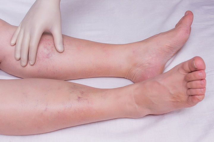 Dagadó boka, ödémás láb: milyen betegség lehet az oka? - EgészségKalauz
