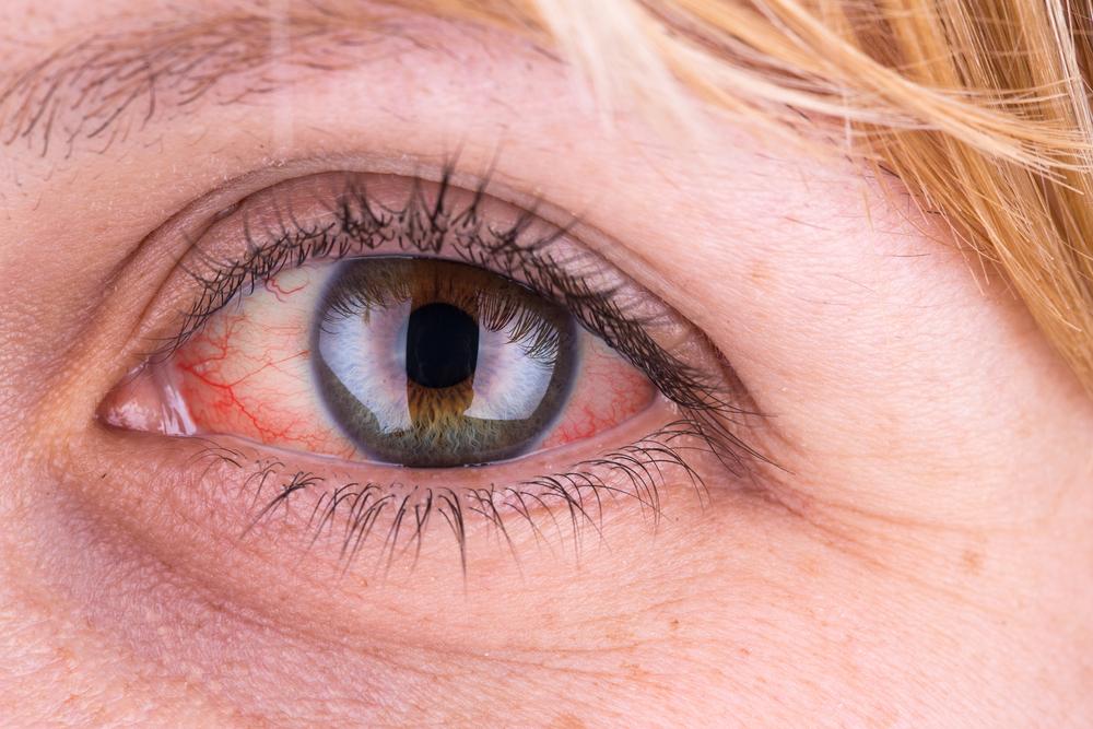 szemgolyó magas vérnyomás magas vérnyomás és feokromocitóma