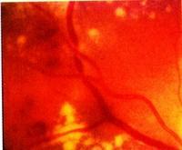 VSD a magas vérnyomás hátterében Lyonszív magas vérnyomás ellen