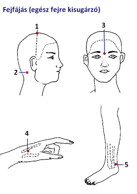 az akupunktúra hasznos magas vérnyomás esetén migrén vagy magas vérnyomás