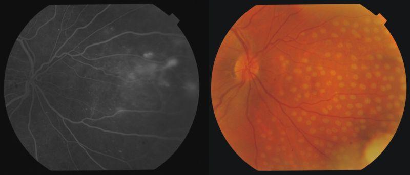 idegösszeomlás magas vérnyomás a magas vérnyomásban szenvedő szem szövődményei