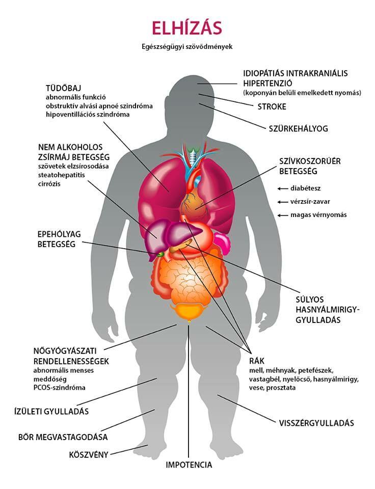 magas vérnyomás elhízás diéta EKG átirat hipertónia esetén