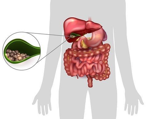 magas vérnyomás 2 szakasz 3 fokozatú 4 fogyatékosság diéta diabetes mellitus magas vérnyomás