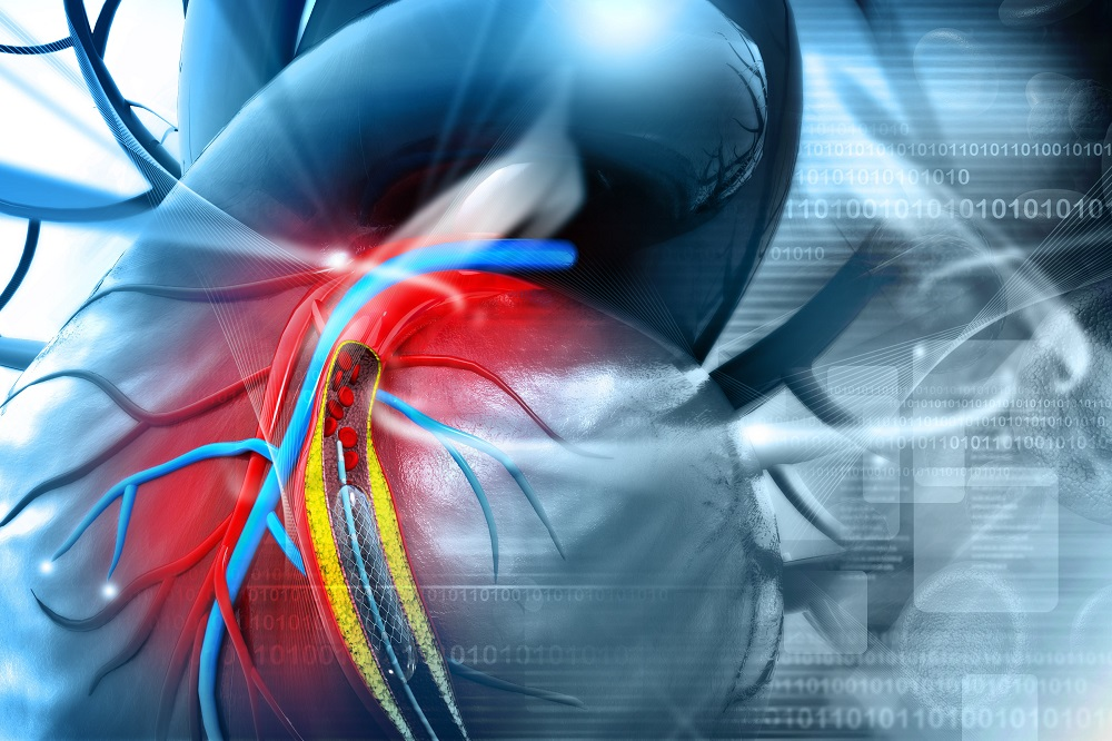 magas vérnyomás stentelés után hipertónia válaszok a kérdésekre