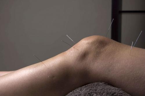 az akupunktúra hasznos magas vérnyomás esetén élet hipertóniával fórum