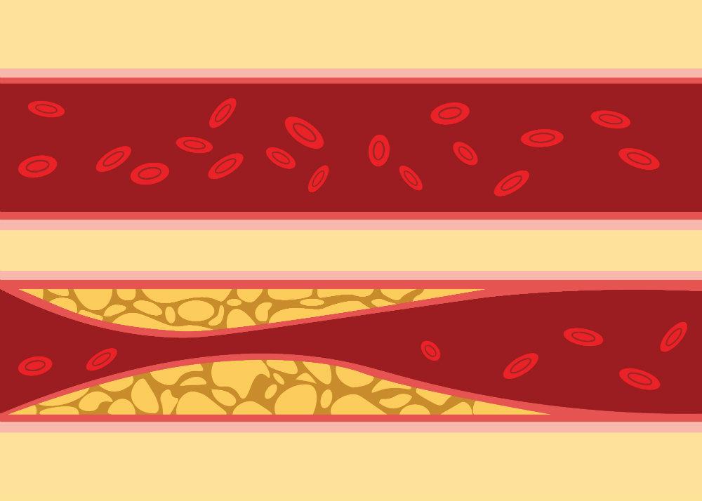 A magas vérnyomás 2 szakasza mi okozza a magas vérnyomással járó köhögést