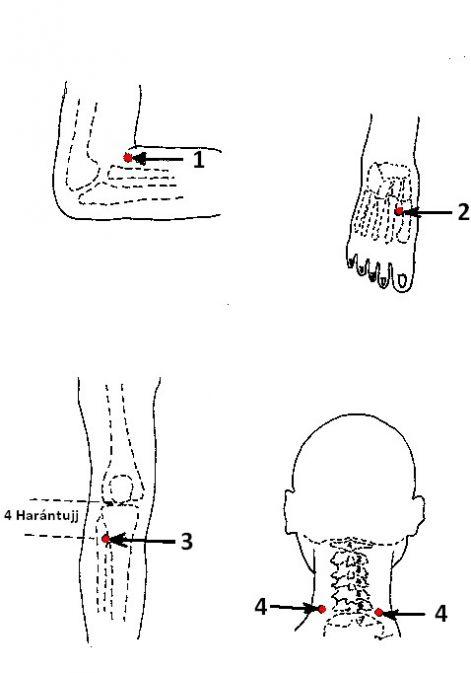 az akupunktúra hasznos magas vérnyomás esetén magas vérnyomás angina pectorissal kombinálva