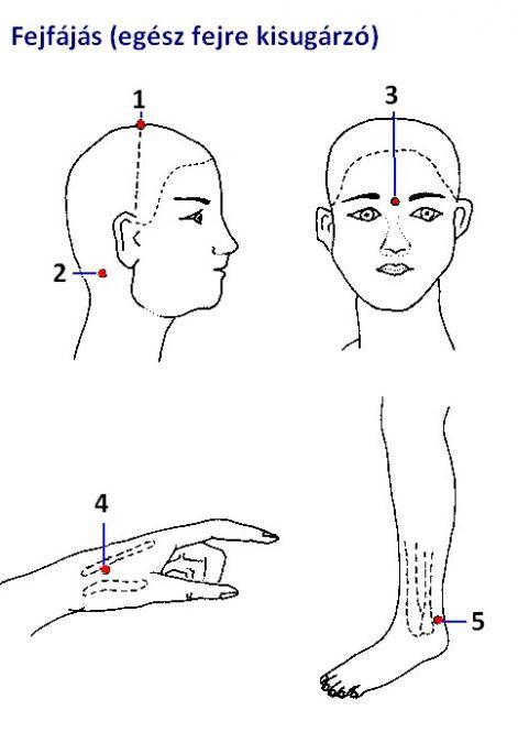akupunktúra a hipertónia arcán A hipertónia 1 csoportja