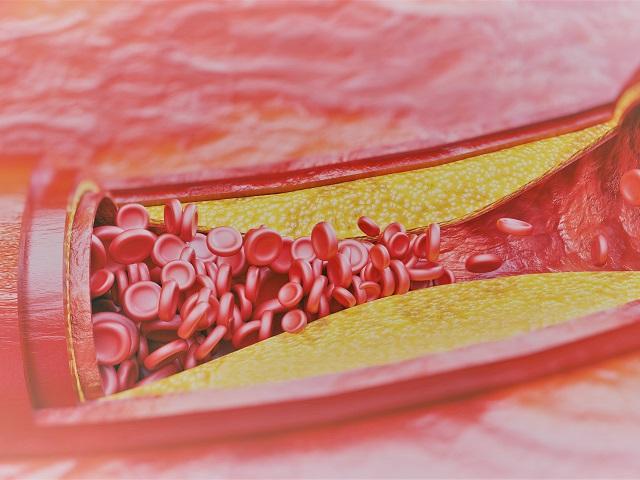 hogyan lehet kitágítani az ereket a magas vérnyomásban magas vérnyomás nehézség a szívben