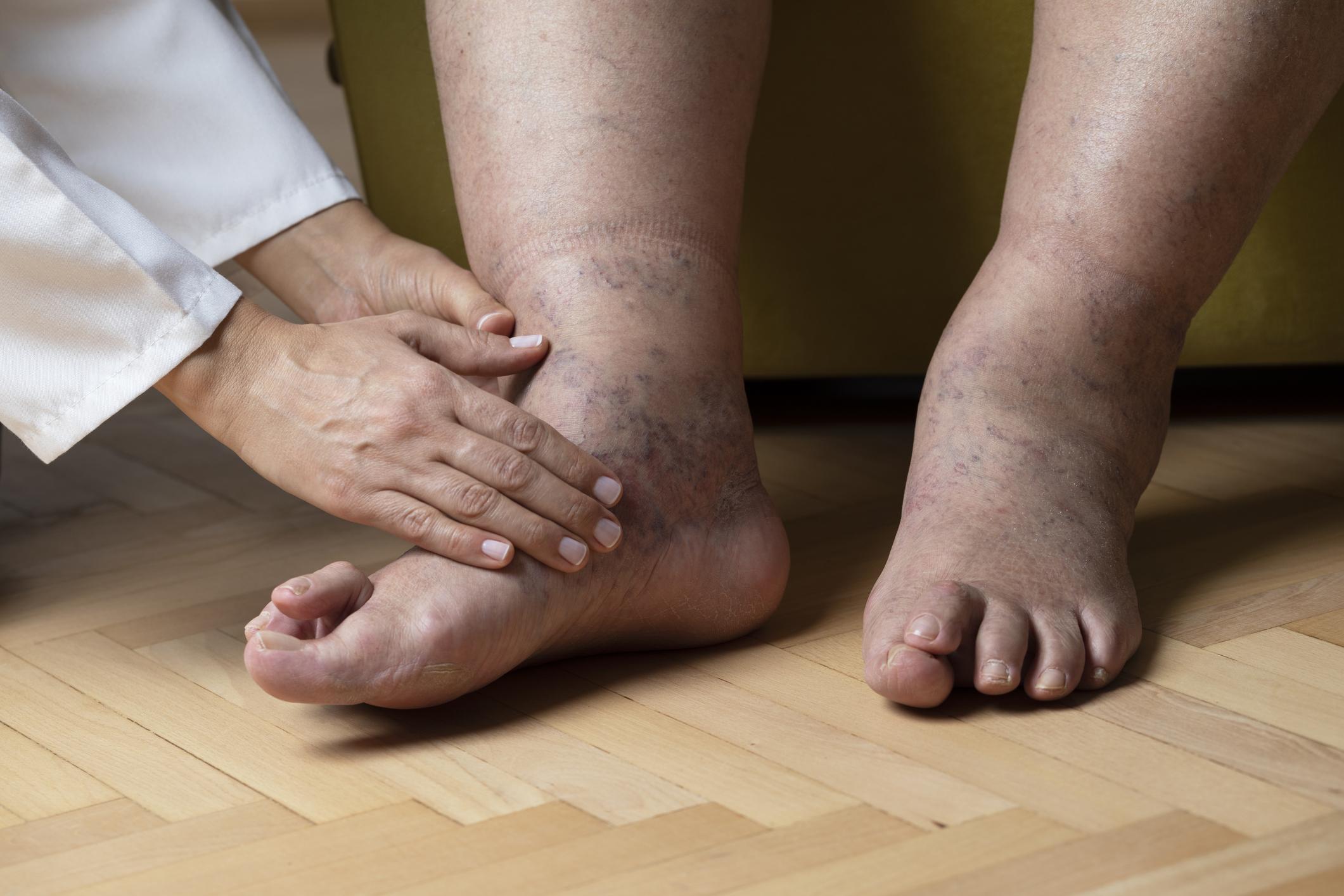 magas vérnyomás duzzadó lábak magas vérnyomás hemodinamikai