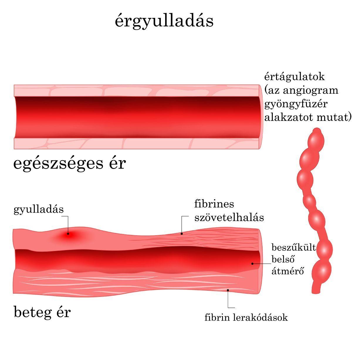 celandin hipertónia kezelése magas vérnyomás és hipotenzió mi a különbség