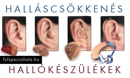 magas vérnyomás és zaj a fülben és a fejben magas vérnyomású idegrendszer